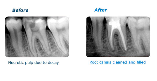 before-after-root-canal