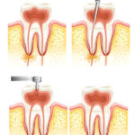 root canal cambridge