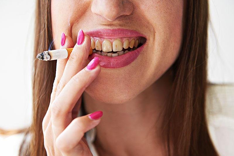 What Does Smoking Do to Your Teeth